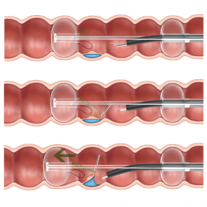dilumen dr retraction system